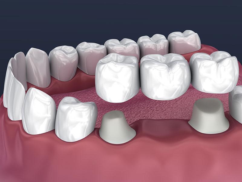 dental bridges in winnipeg