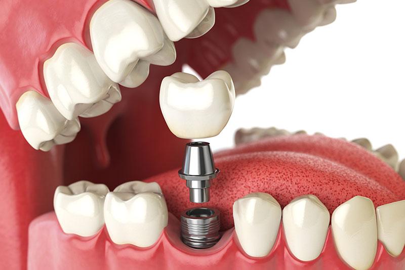 dental implants in winnipeg