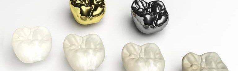 understanding the different types of dental crowns
